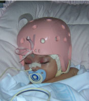 baby with a pink helmet in the hospital